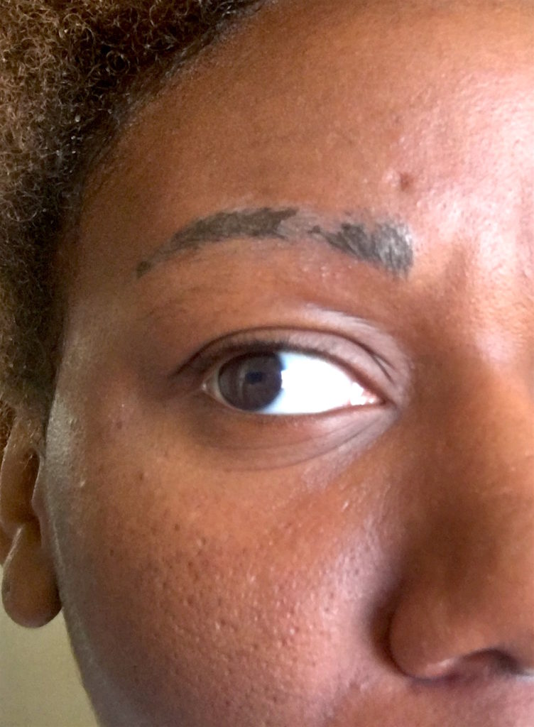 In both procedures extra ink was placed on top of my brows; I guess you can compare it to icing on a cake. As you wash your face, that access ink chips away until you're left with your new brows. #IWasUnderWhelmed