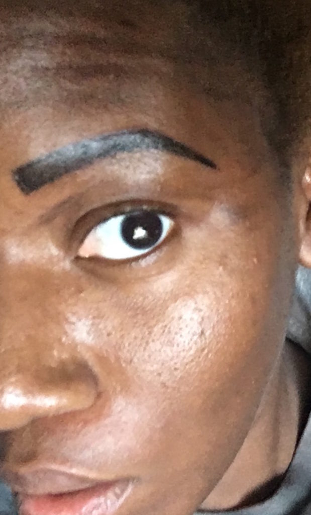 Looking like a Nike symbol immediately after my touchup. The ink faded over time. Instead of a blade, my brows were literally tattooed on.
